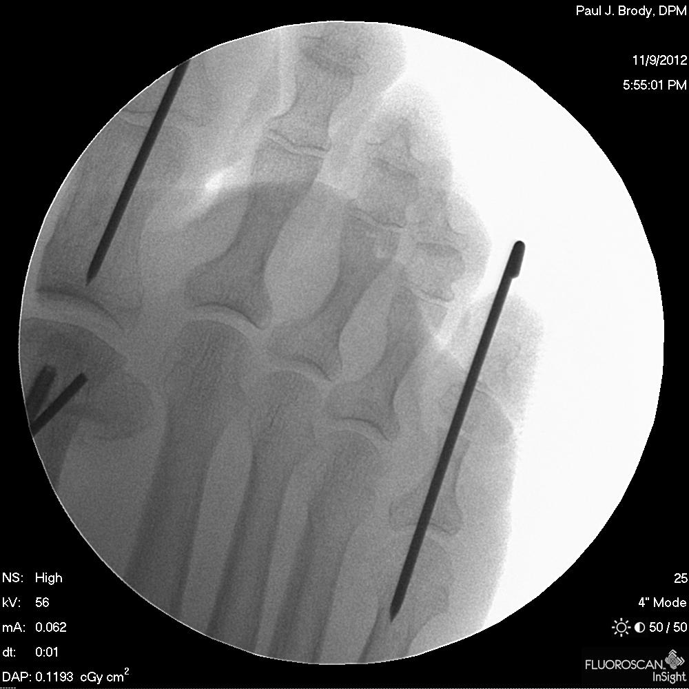 After Foot Surgery Dr. Paul Brody