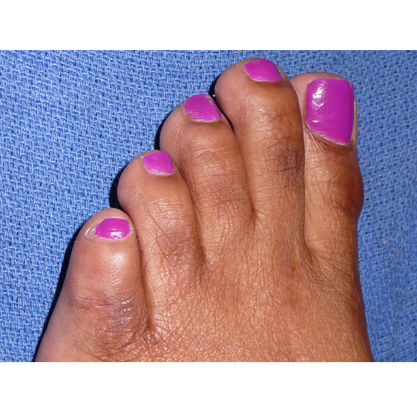 After Foot Bunion Surgery Dr. Paul Brody