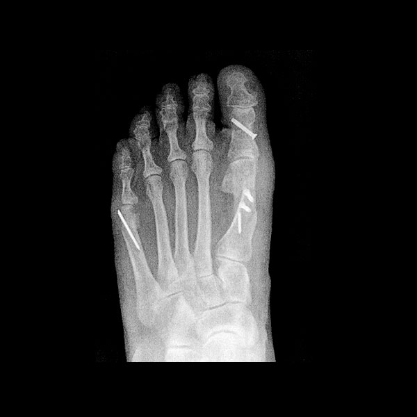Bunion Surgery by Dr. Paul Brody