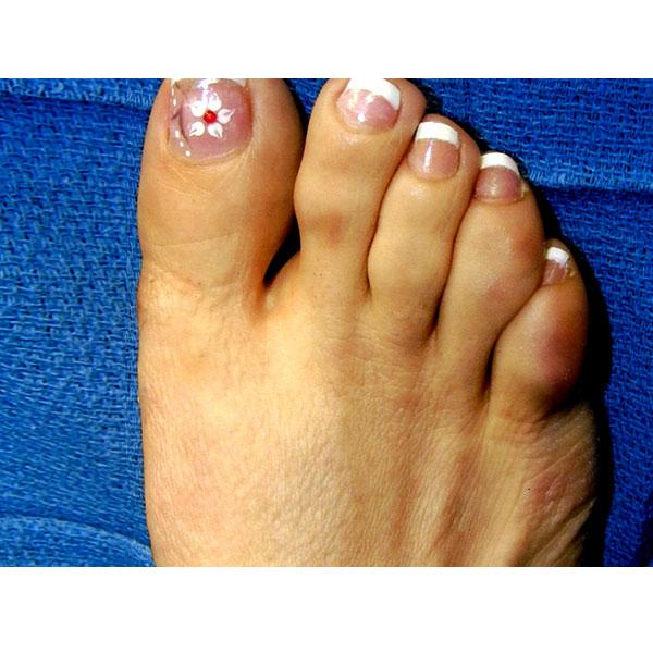 Hammer Toe Surgery Dr. Paul Brody