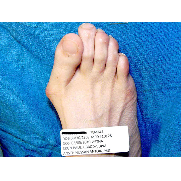 Before Bunion Surgery Dr. Paul Brody