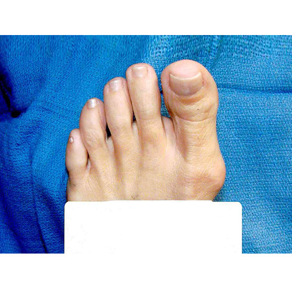 Foot Treatment Dr, Paul Brody