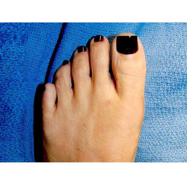 Foot Treatment Dr. Paul Brody