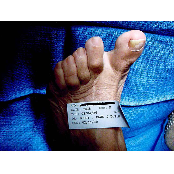 Foot Bunion Treatment Dr. Paul Brody