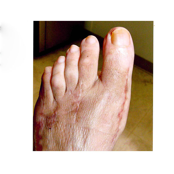 Over Corrected Bunion Surgery Dr. Paul Brody