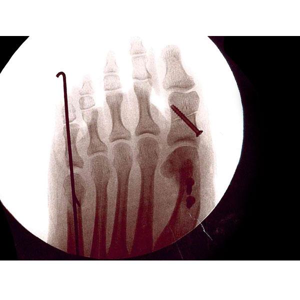 Bunion Surgery Dr. Paul Brody